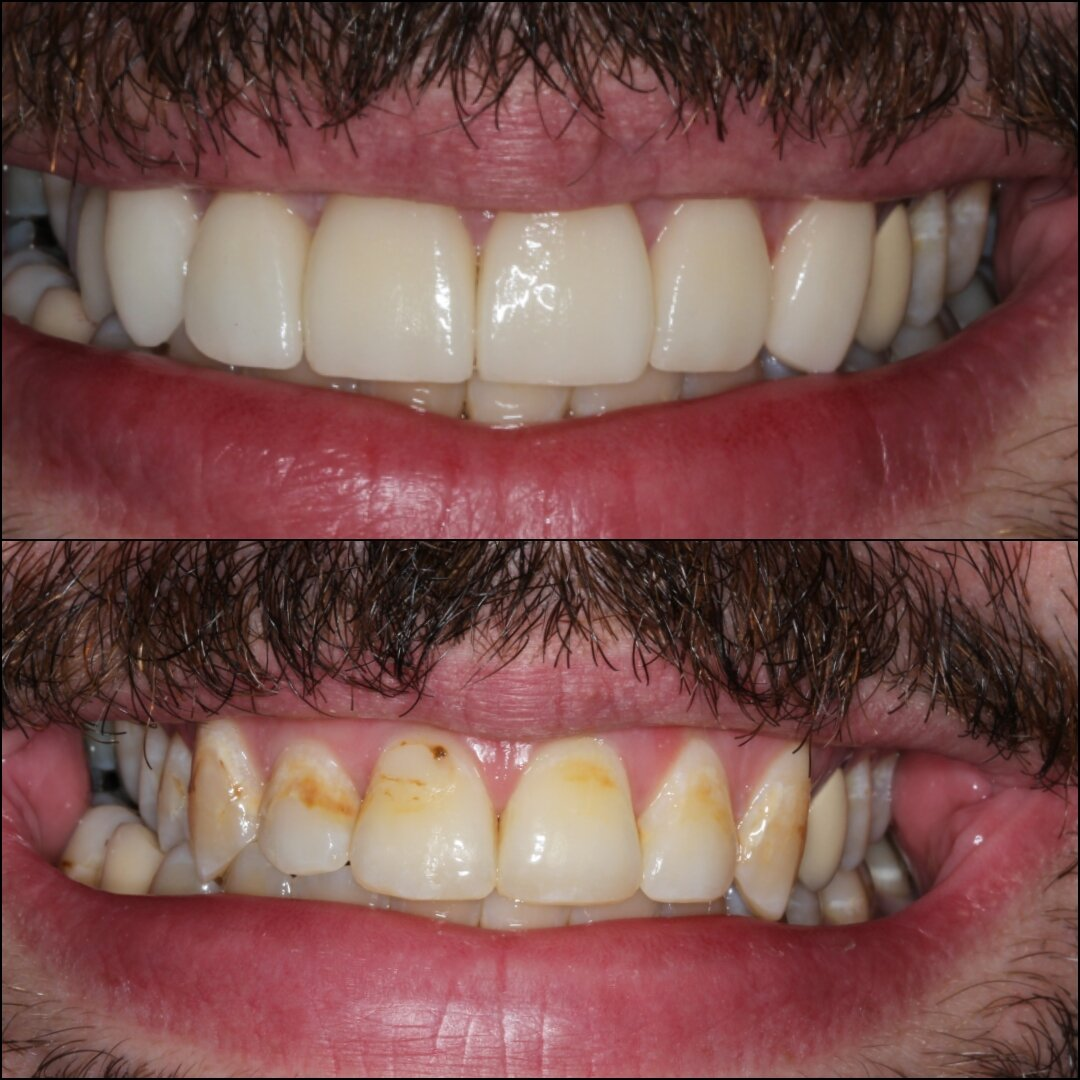 Porcelain veneers by Dr. Julio Oliver in Cartagena (Before and After) - Dental Tourism Colombia