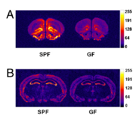 Proteins involved in anxiety and learning are expressed differently in control (SPF-left) and bug-less (GF-right) mice. For those interested, A is NGF-1A, B is BDNF