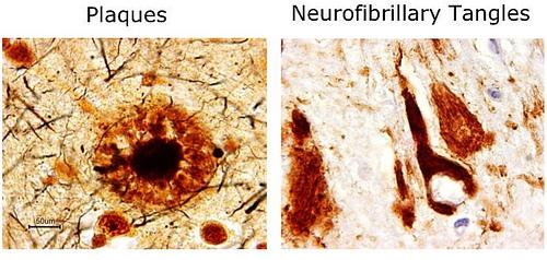 Neuropathology in Alzheimer's disease. Source: http://farm5.static.flickr.com/