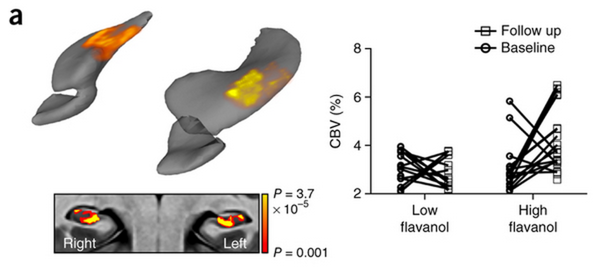 Left: Comparing high- to low-flavanol groups, the former shows activation in the body of the hippocampus. Right: Blood volume (CBV) changes for every volunteer.