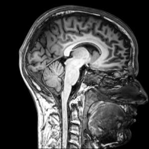 brain-300x300.jpg