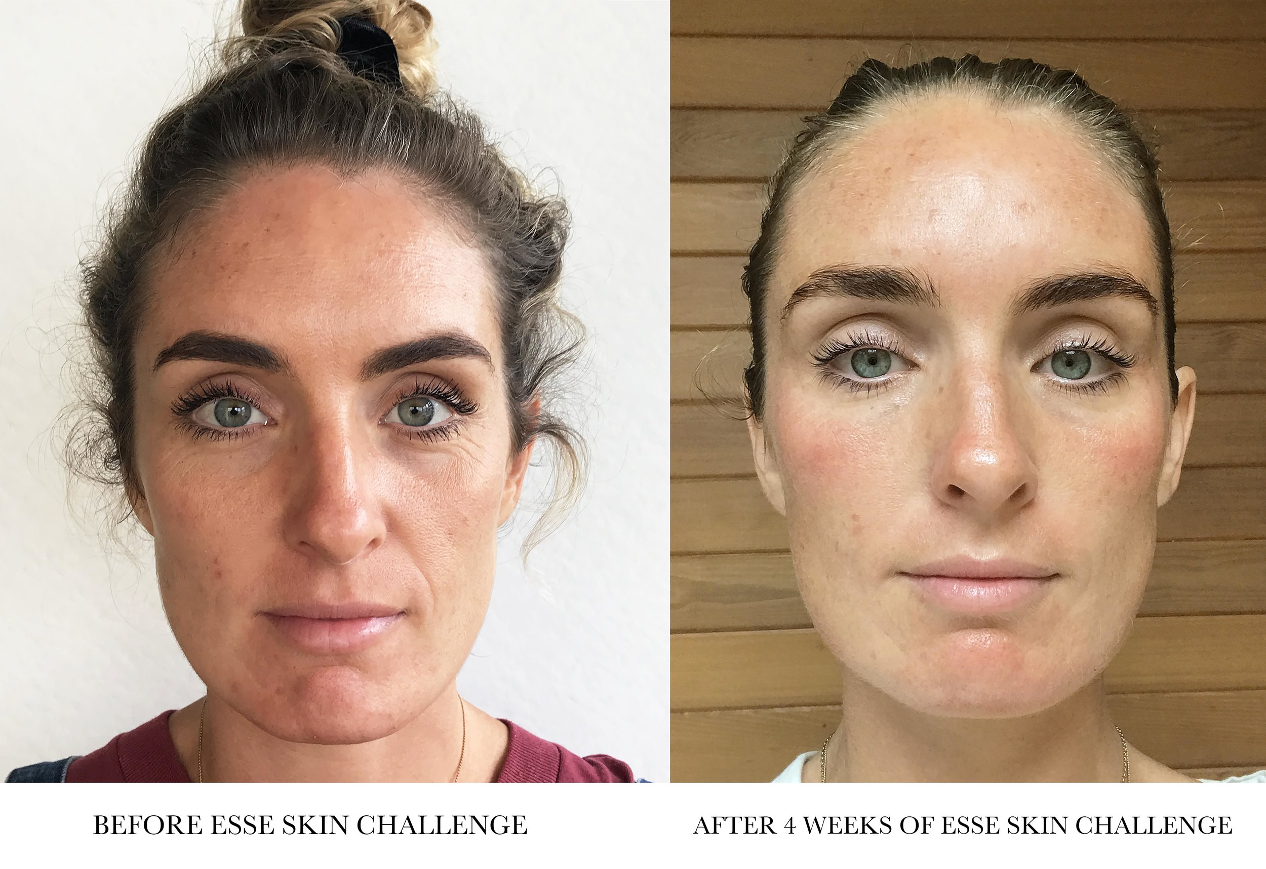 BEFORE AND AFTER Esse skin care