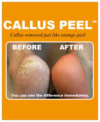 - Callus Peel Hard Skin Removal Treatment £30 Callus Peel away your hard skin and calluses. We recommend anyone with stubborn and thick hard skin to try this amazing product. Available in salons only.Callus Peel Nails & Cuticles £40 Callus Peel hard skin removal as above, with a warm foot soak, nails and cuticle tidy. Your feet are then moisturised to finish.Callus Peel Pedicure (including plain or French polish) £50Callus Peel hard skin removal, a warm foot soak nail and cuticle tidy. Your feet are then moisturised and finished off with a polish of your choice.