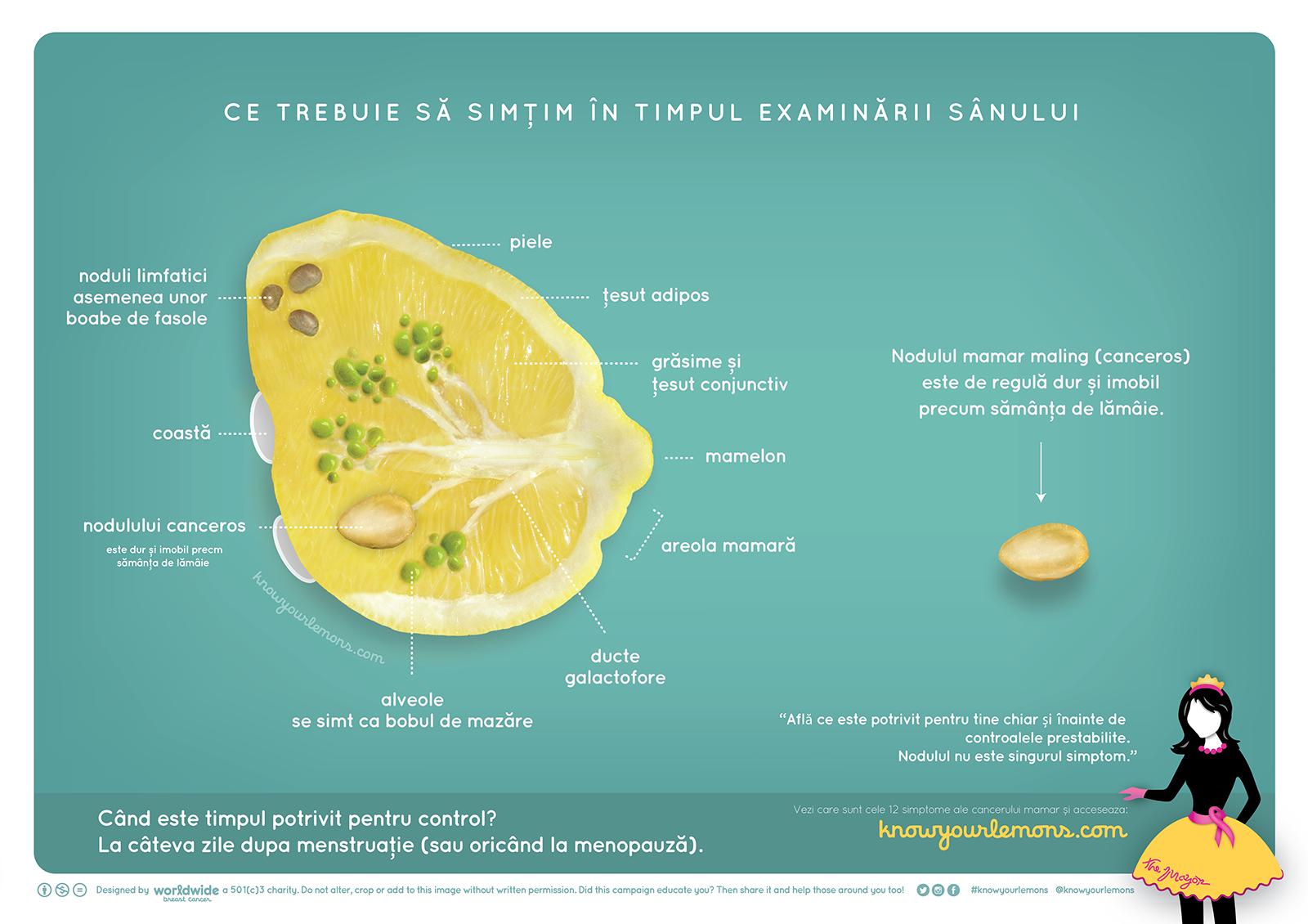 romanian-anatomy.png