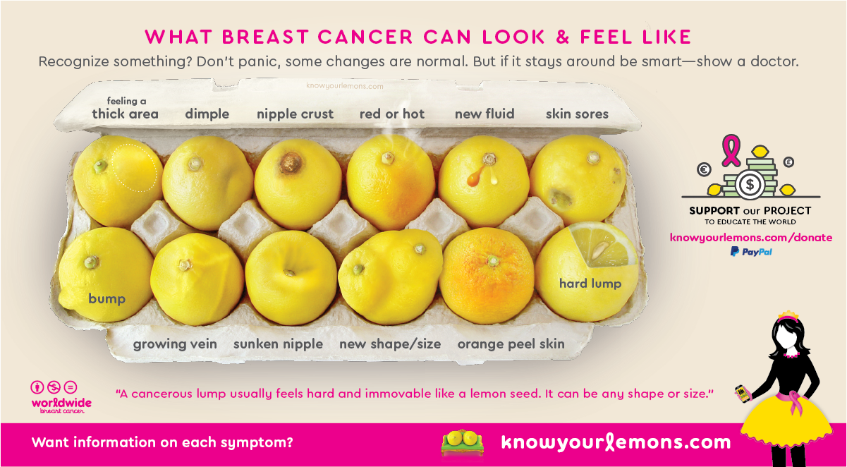 Current version of the 12 signs of breast cancer image.
