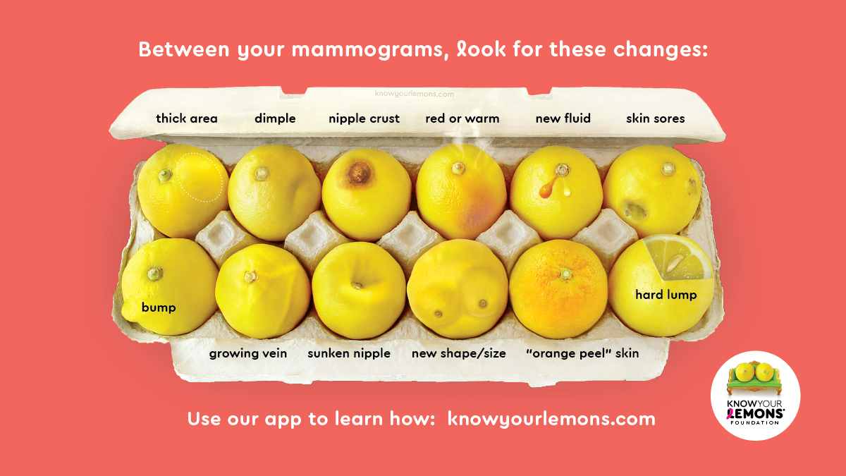 12 Signs Of Breast Cancer Knowyourlemons Breast Health Education