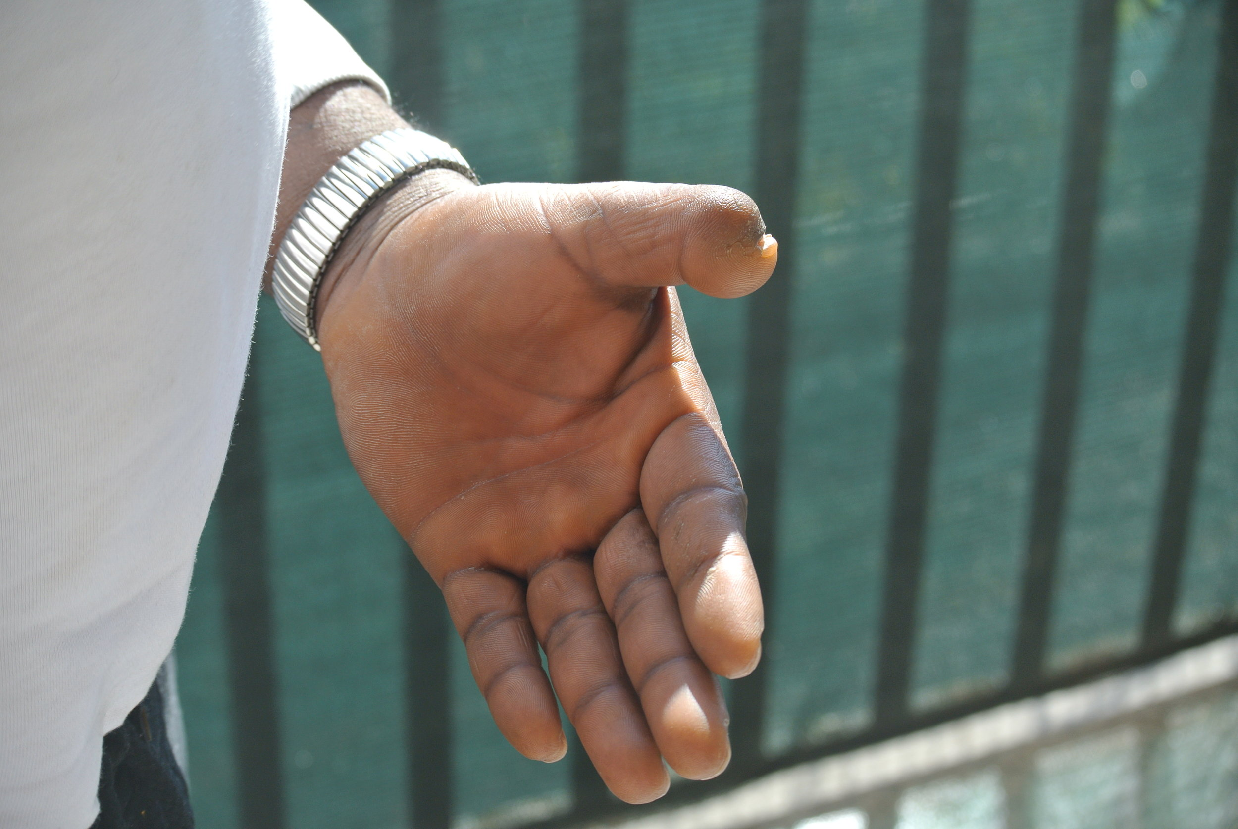 His severed thumb, violence he survived before leaving Ghana. Mendicino, Italy; 19 February 2019. ©Pamela Kerpius