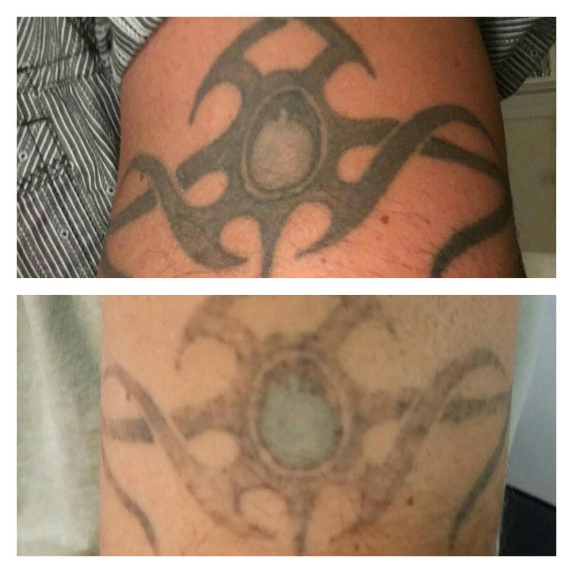 ONE LASER TREATMENT