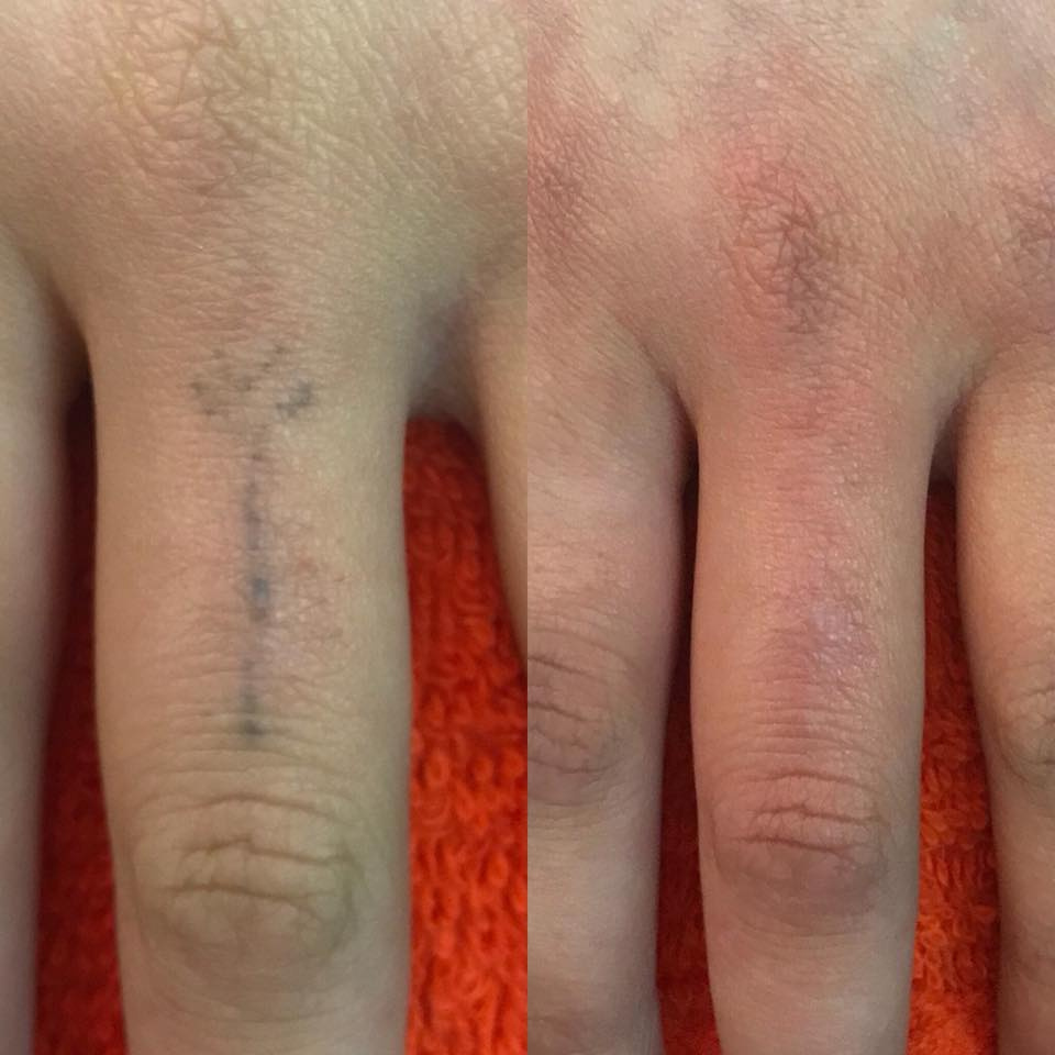 FULL REMOVAL. ONE TREATMENT