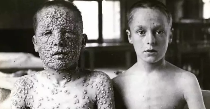 Smallpox Comparison