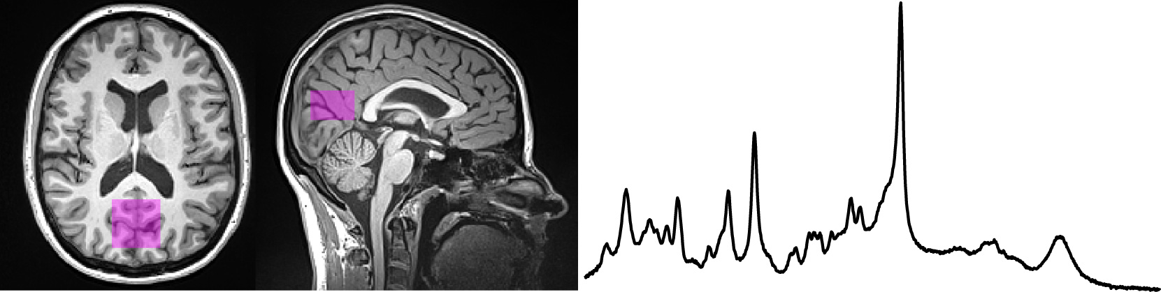 Localized proton magnetic resonance spectroscopy for measurements of neurochemical concentrations in the human brain.