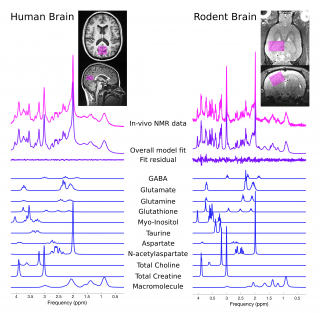 An MRS spectrum comparing different metabolite levels in the brain in human and rats