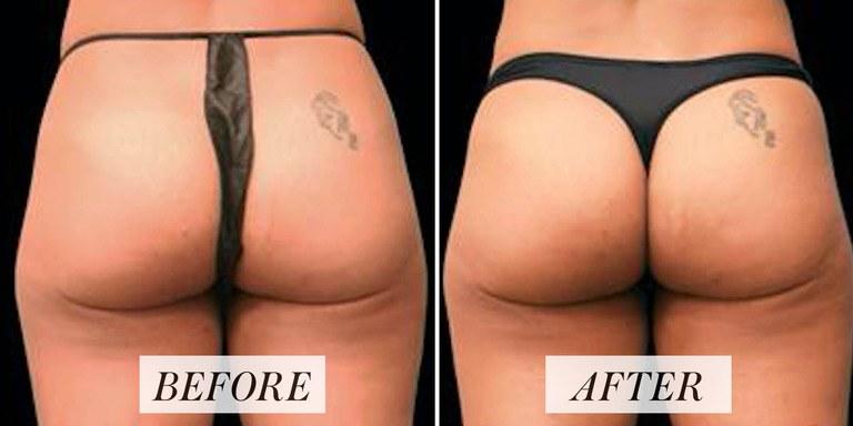 emsculpt-before-after3-social.png.jpeg