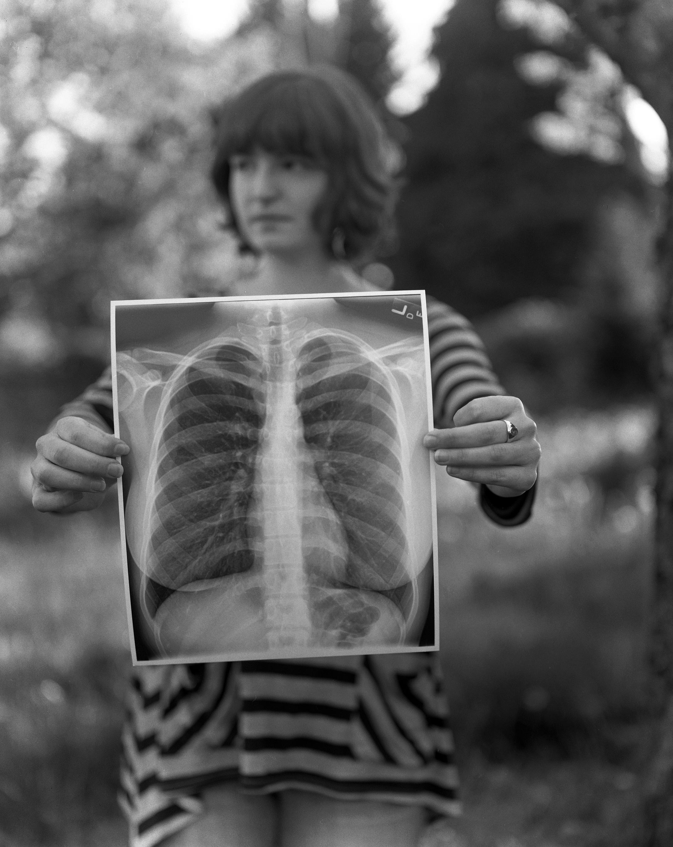 X-ray, May 2013