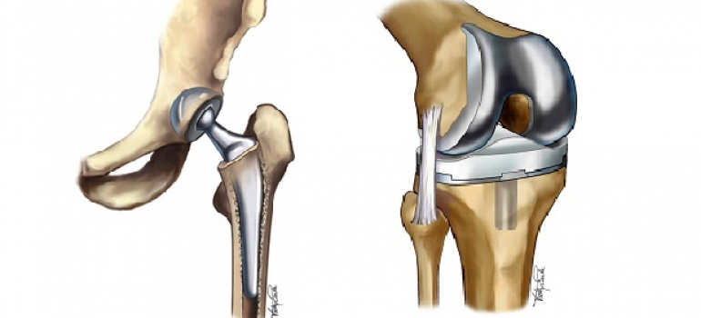 Physical Therapy for joint replacements.