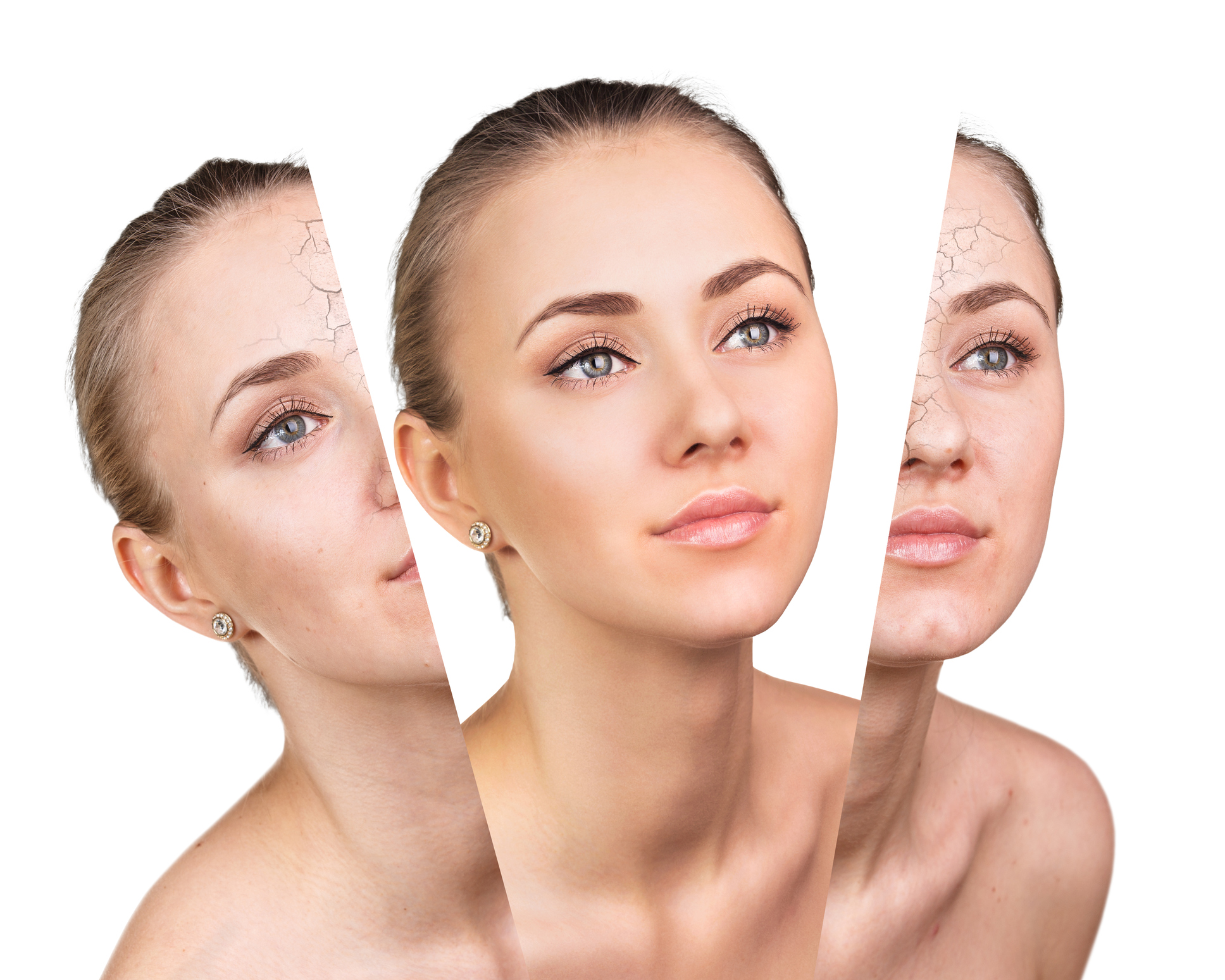 Skin needling damages your skin so it works hard to produce new and fresher skin, naturally.