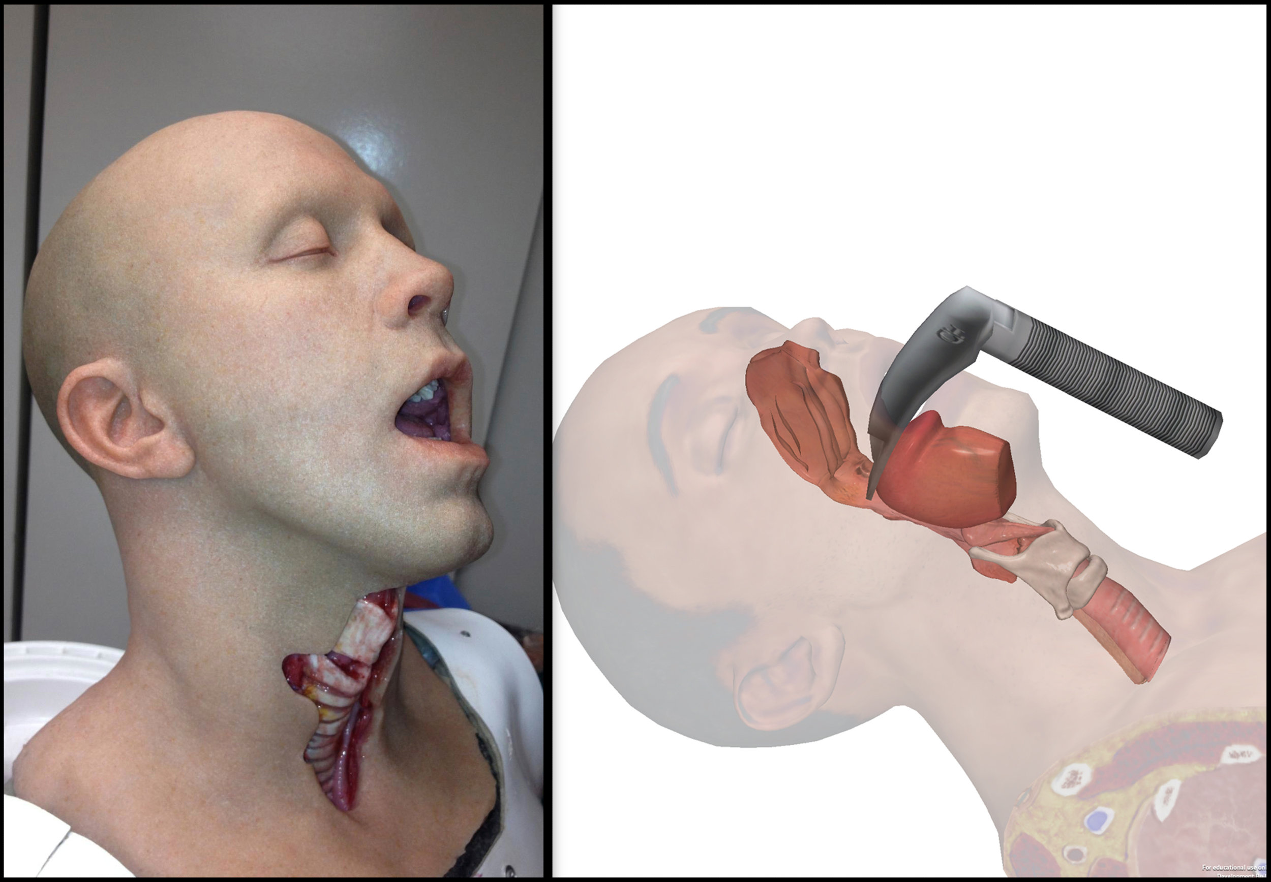 Advanced Airway Trainer