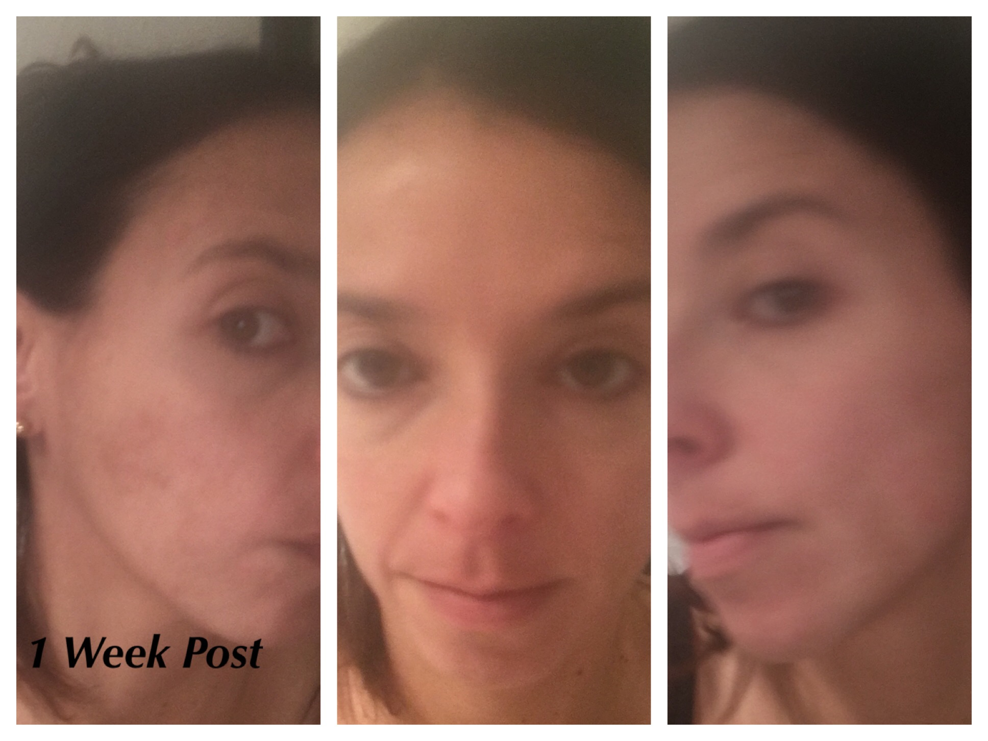 Happy with the results. All my skin has peeled. I found that my pores were minimized and the peel helped to erase fine lines and wrinkles. VI Peel definitely helped lighten my pigmentation.