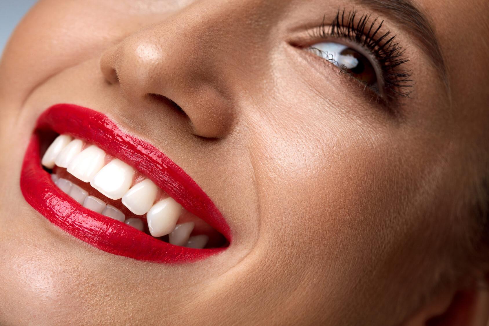 Beautiful teeth following teeth whitening