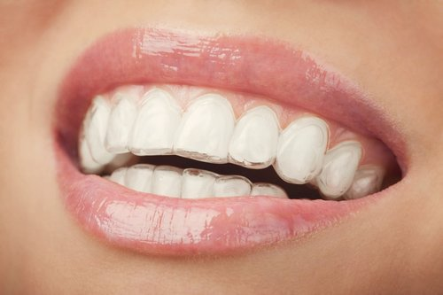 Close up of a clear brace for adult teeth straightening