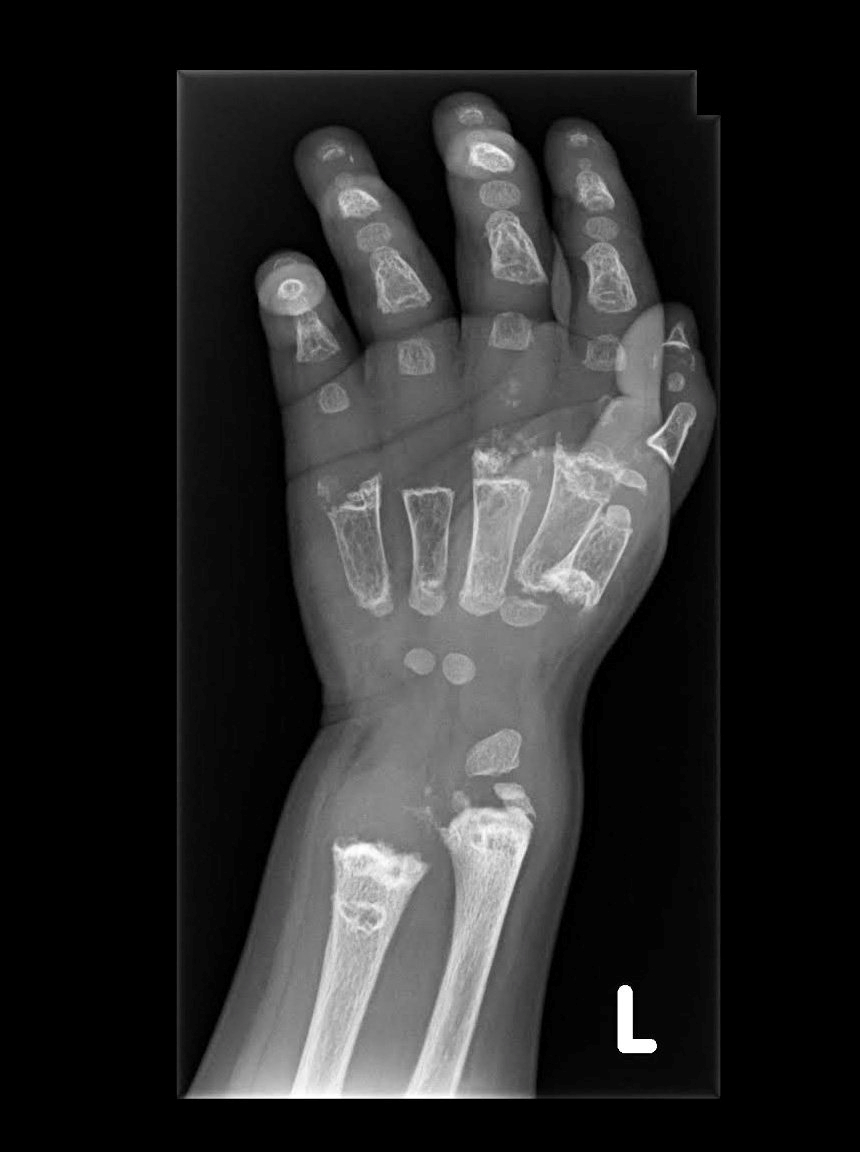 An X-ray shows Arshaan's hand bones