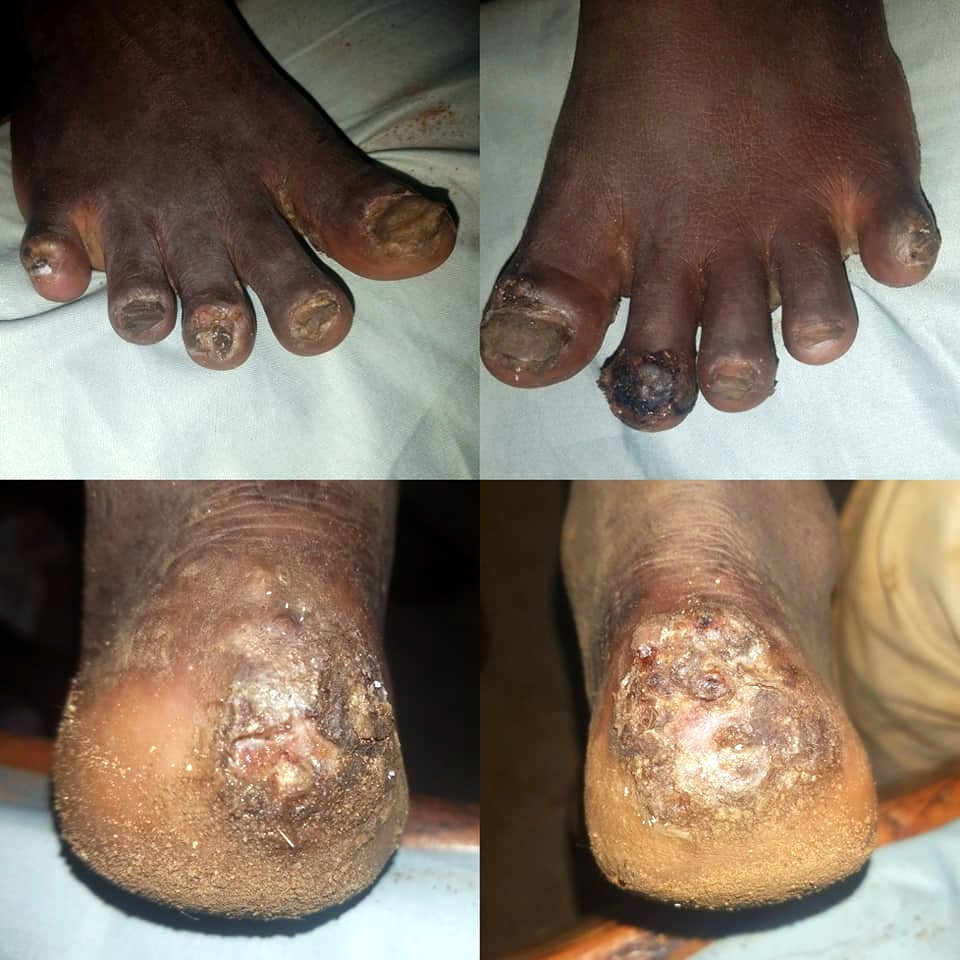 This is the worst case we have seen. I can't wait to see his feet all healed up.