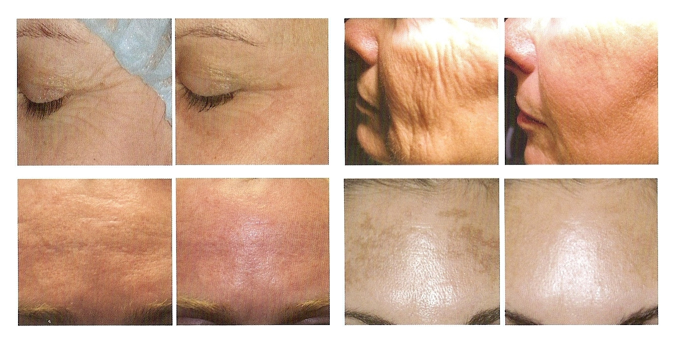 Z Medical Aesthetics Starlux Laser Skincare Treatment Temple TX