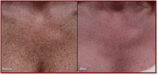 Z Medical Aesthetics IPL Photofacial Skincare Treatment Temple TX