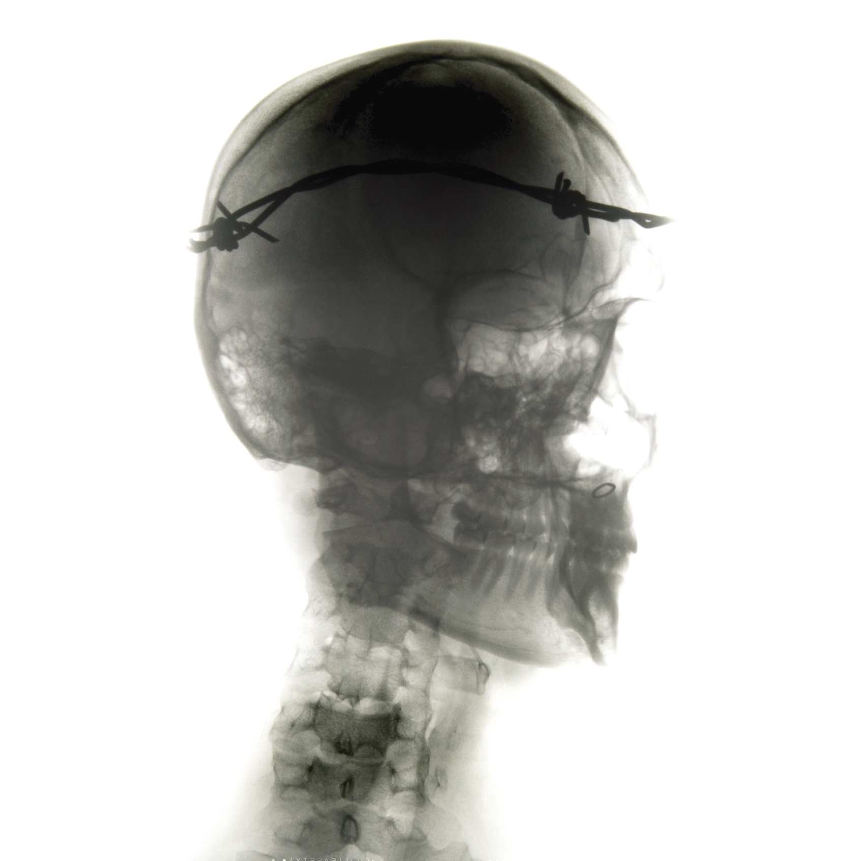 Mártires Radiográficos: El Mesías