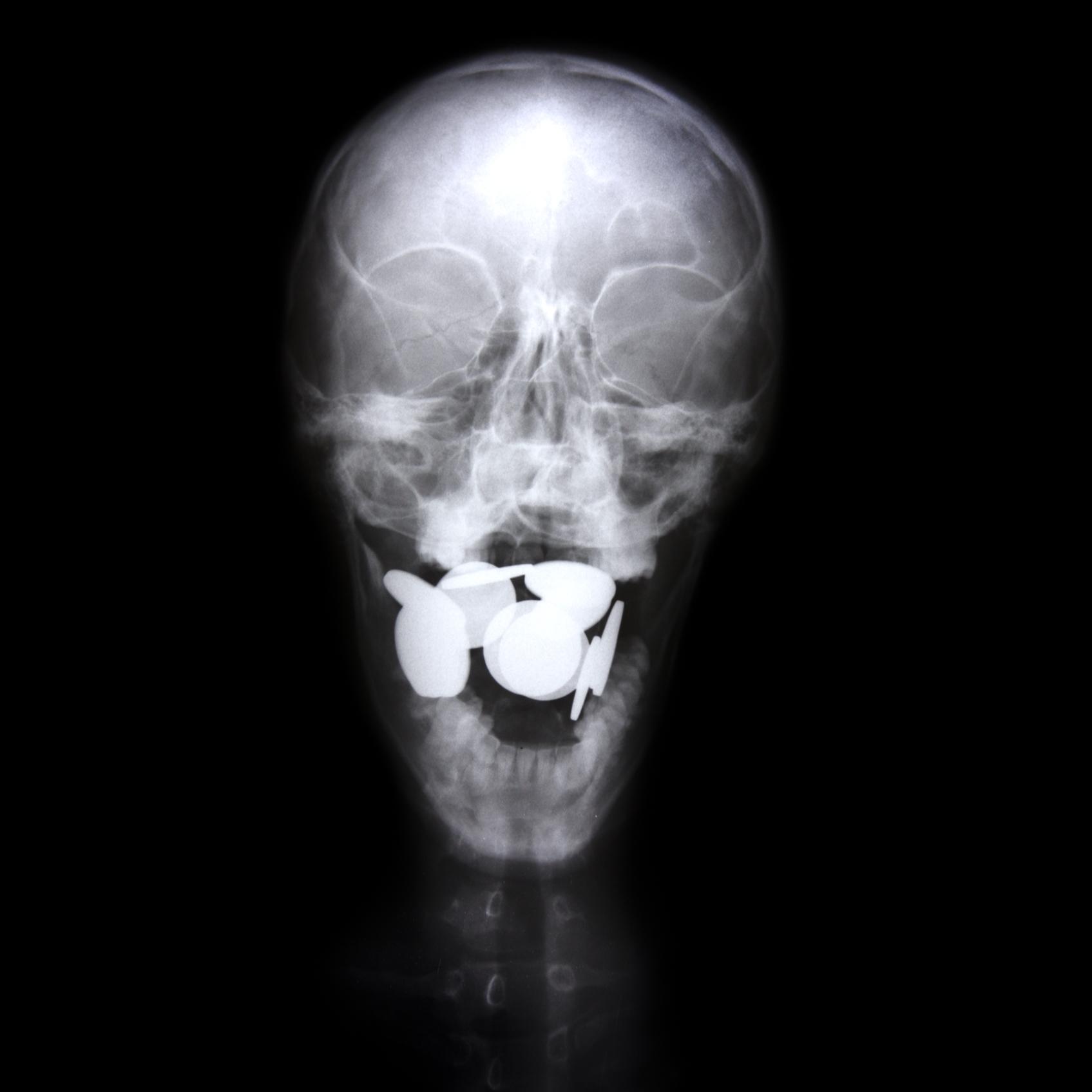 Mártires Radiográficos: El Adversario
