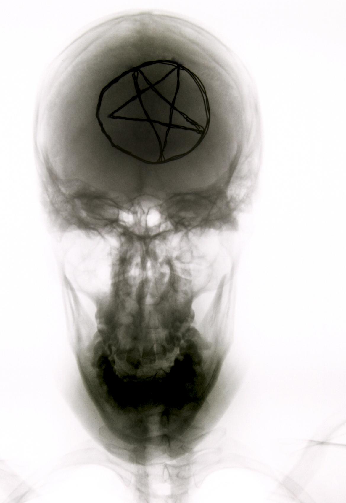 Mártires Radiográficos: El Guardián de Su Hermano