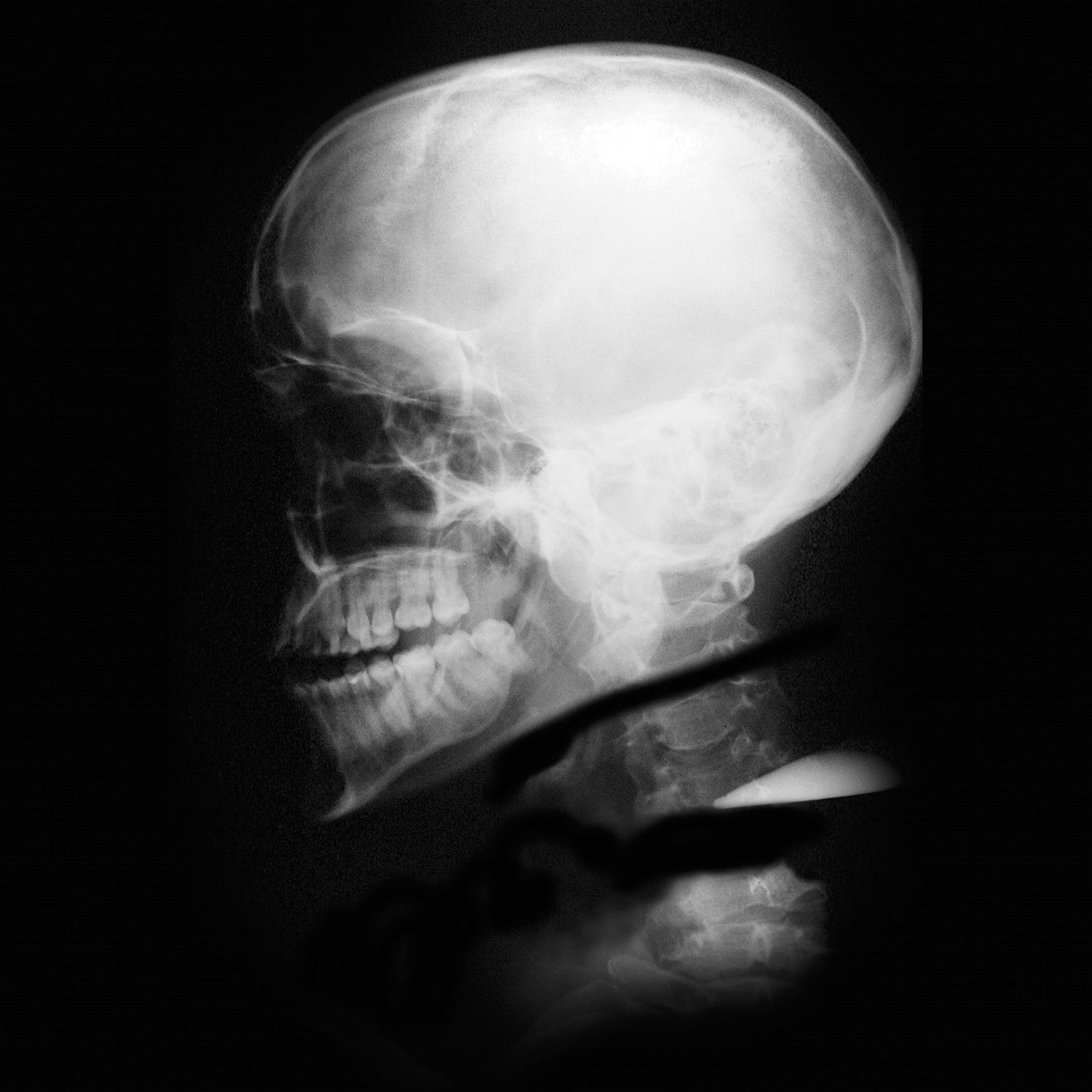 Mártires Radiográficos: El Profeta