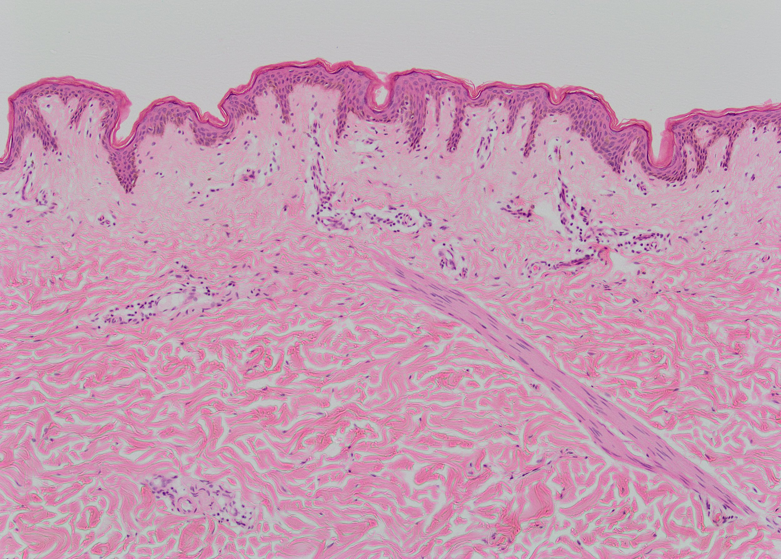 Figure 1:  Haematoxylin and Eosin (H and E) stain of normal skin as control. There is a clear distinction between the dermis and epidermis. The epidermis shows keratin flaking from the surface. The dermo-epideroid junction is clearly defined and there are healthy rete pegs separating the papillary and reticular dermis