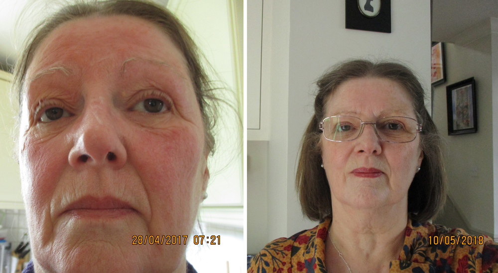 Eczema on face.JPG