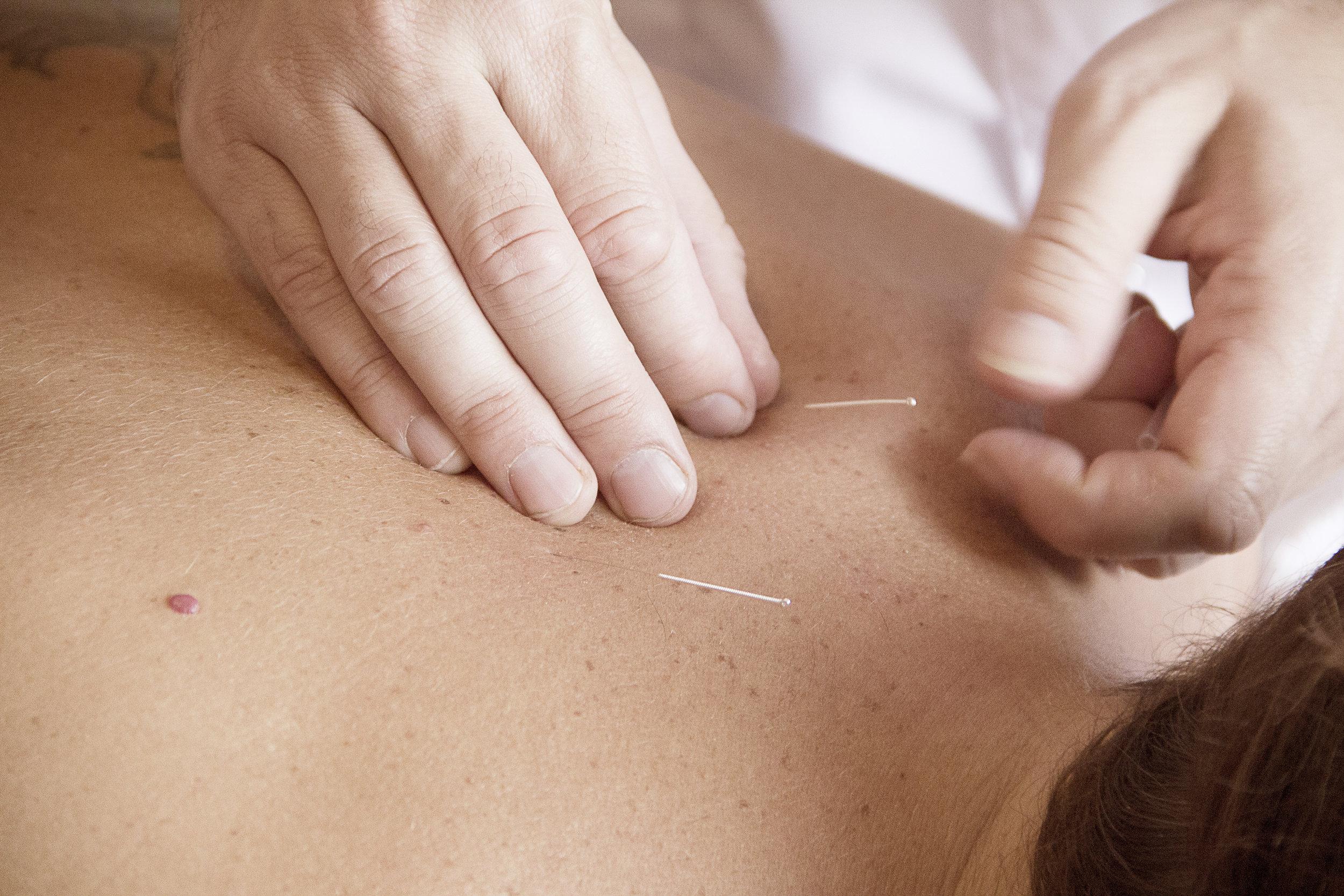 La inserción de agujas extra.finas es otra característica de la acupuntura japonesa, que reduce notablemente la sensación de molestia asociada a el uso de agujas más gruesas, como sucede en la acupuntura china.