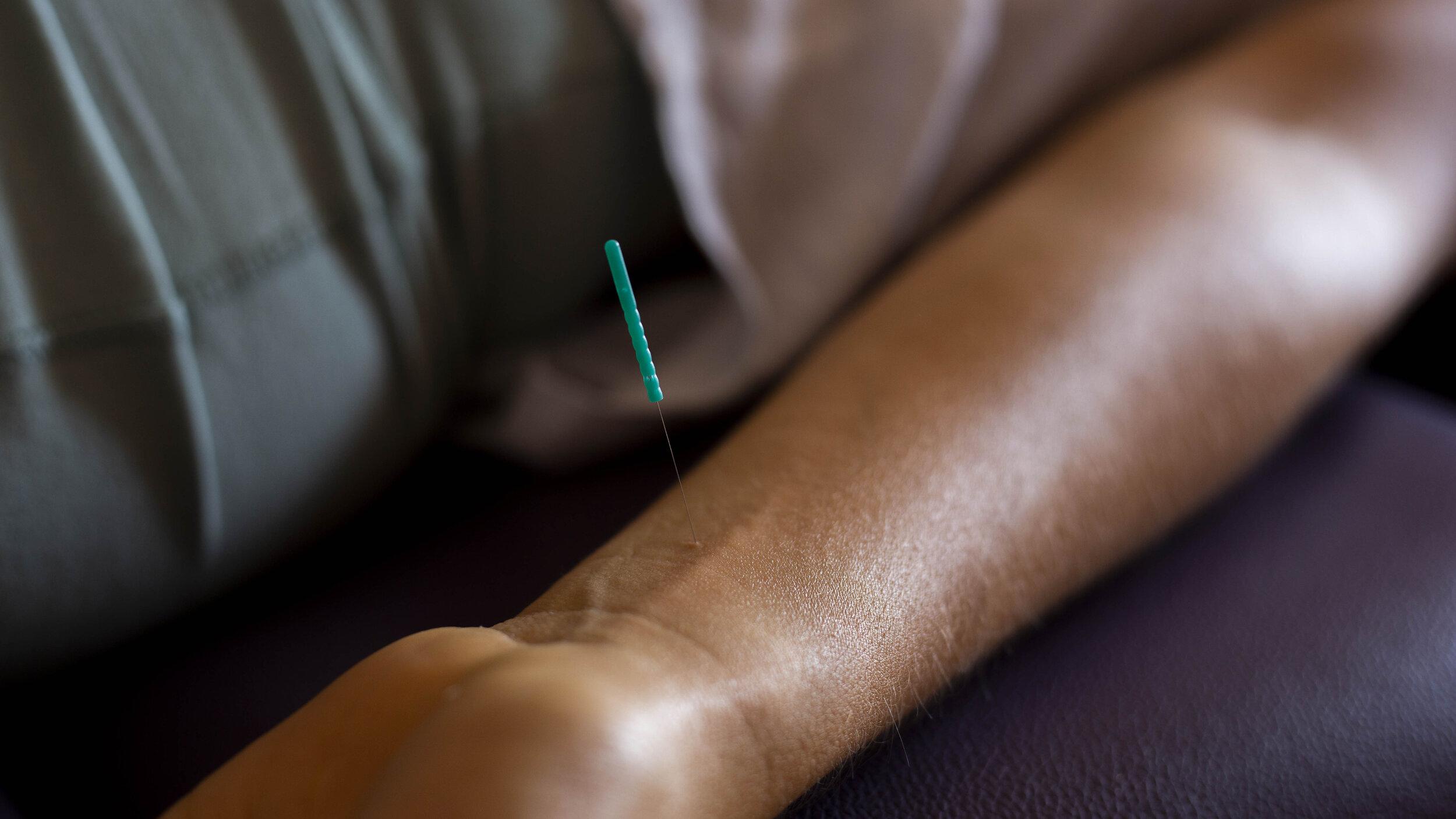 pericardio 6 acupuntura.jpg