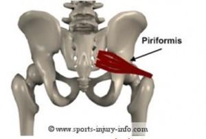 hip bones.jpg