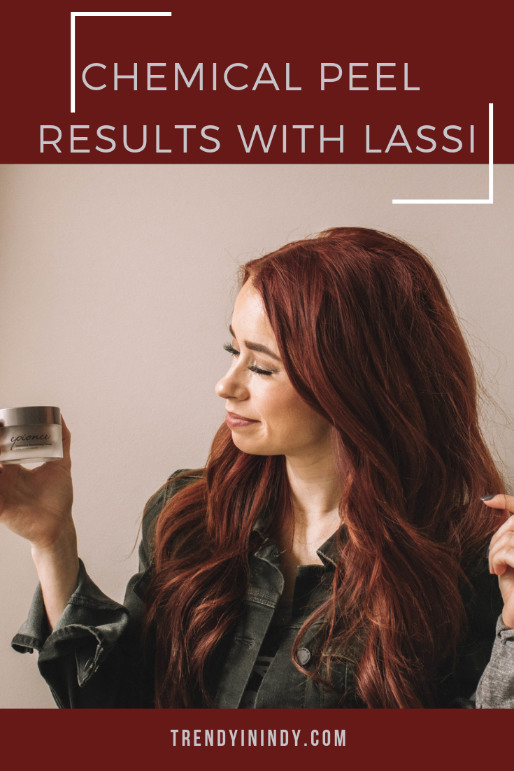 3- Chemical peel results with Lassi.png