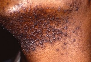 Pseudofolliculitis Barbae Treatments