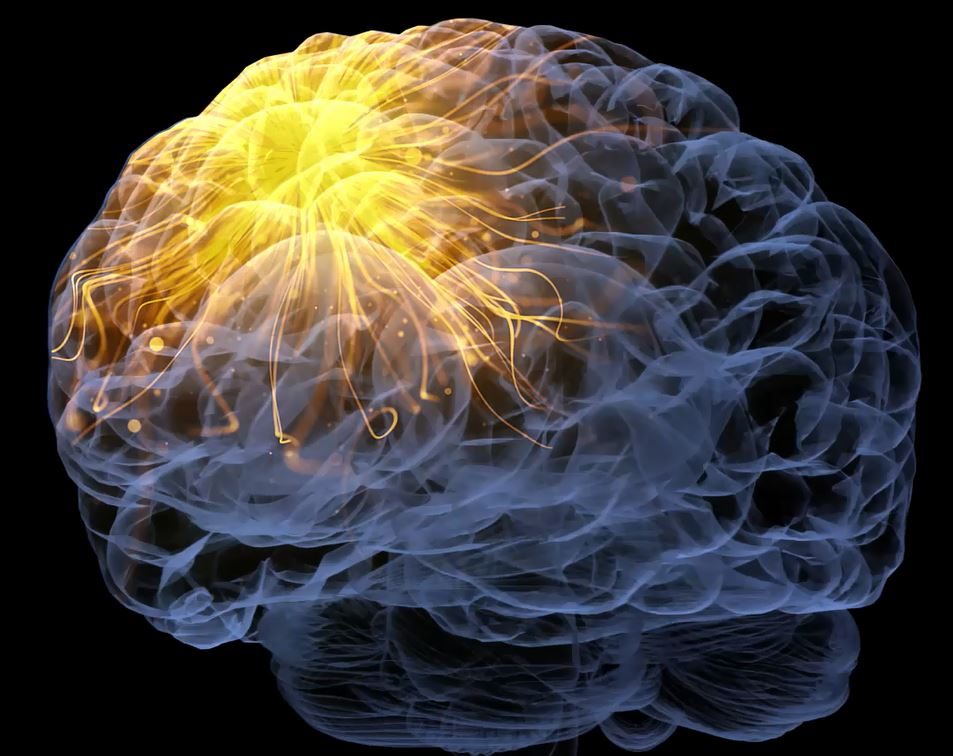 brain image 1.JPG