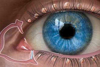oasismed-lacrimal-glands-a-330x220.jpg