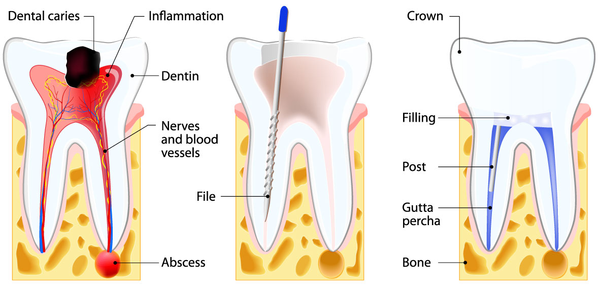 root-canal-terms.jpg