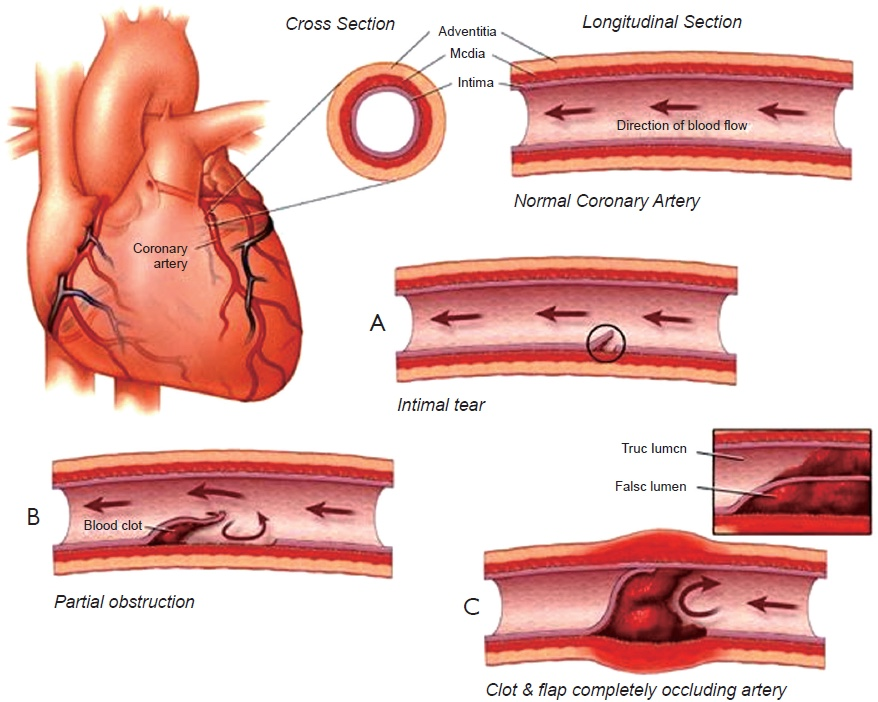 The image above is of the different degrees of S.C.A.D Sudden Coronary Artery Dissection. (Graphic by Journal of Thoracic Disease)