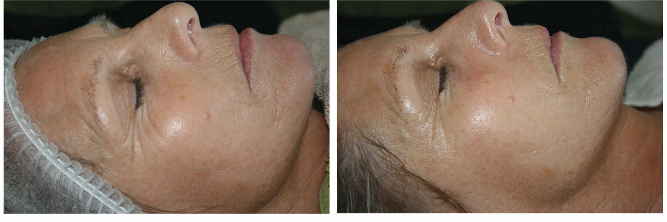 Qi beauty Treatment results.jpg