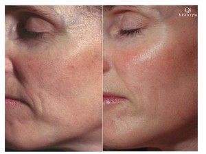 Qi beauty Treatment Results 3.jpg