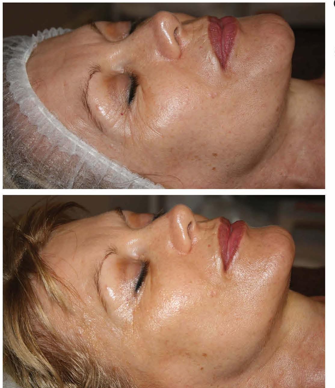 Qi beauty Treatment Results 2.jpeg