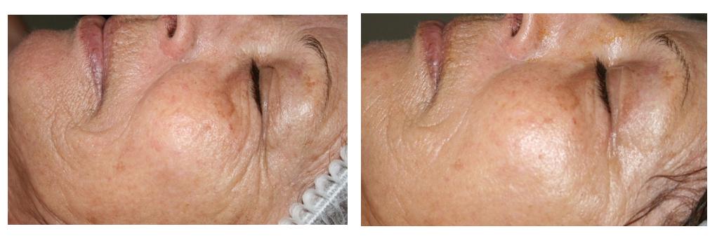 Qi beauty Treatment results 4.jpeg