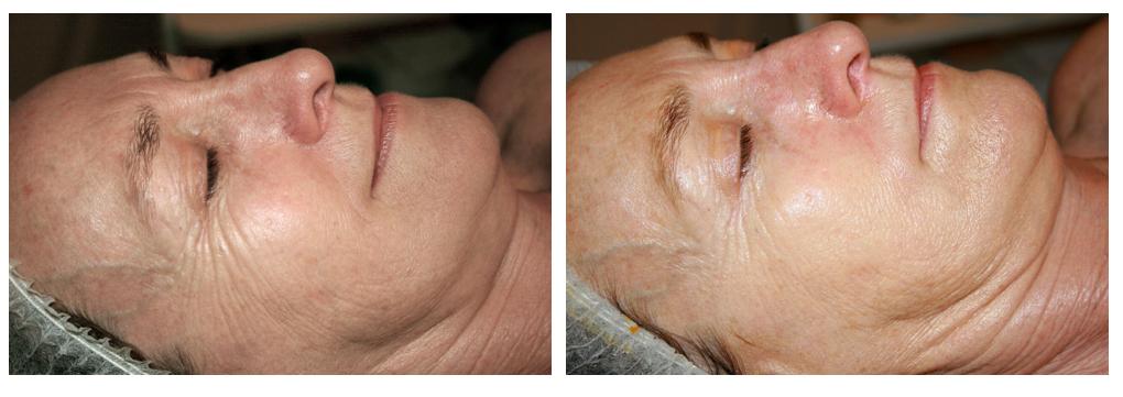 Qi beauty Treatment results 5.jpeg