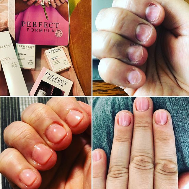 My nails are finally getting back to normal I use @PerfectFormulas treatment and gel coat. Here's the #PF30daychallenge Gel Coat 30 days transformation before & after photos of my nail issues. PS- #Weddingplanner Tip: For all my clients/#brides I always have #PerfectFormulas in my #eventsbeyond #bridalemergencykit it's the perfect quick fix for #weddingpartyprep #beautyemergencykit. [#eventsbeyond #courtneybkern #courtneykern #bridalbeauty #weddingbeauty #nailcare #nailcaretips #craftingcreatingcapturingabeautifullife]