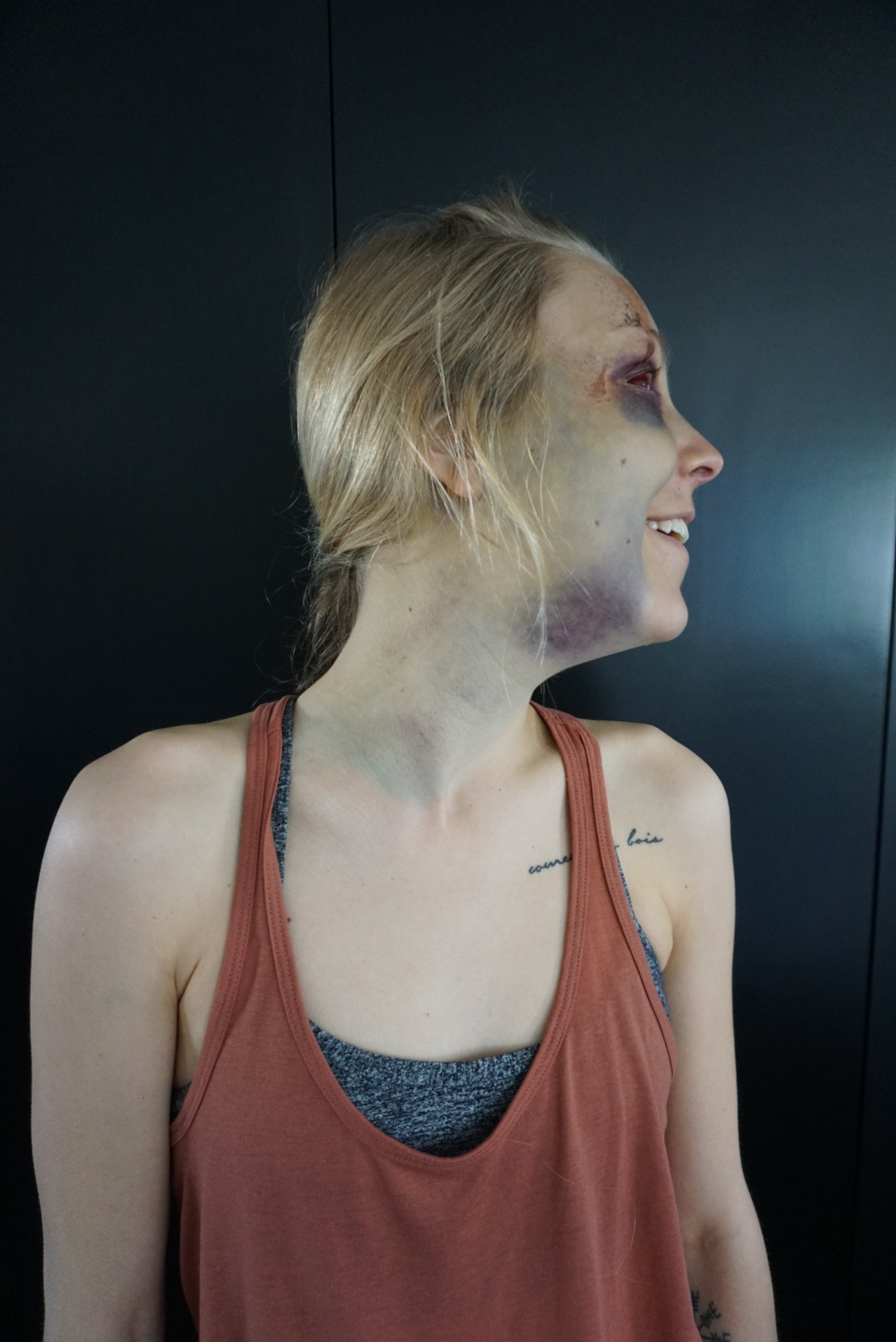 Day 5 - Endless bruising.